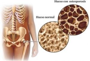 osteoporosis1