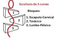 scolio 3cblocks