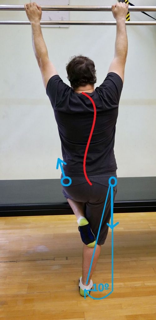 scolio elongation