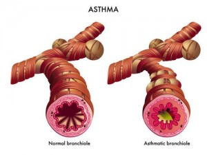 asmabronquiolos