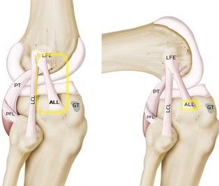 ligamento anterolateral rodilla esquema 002 - Descubre las novedades en el sistema musculoesquelético